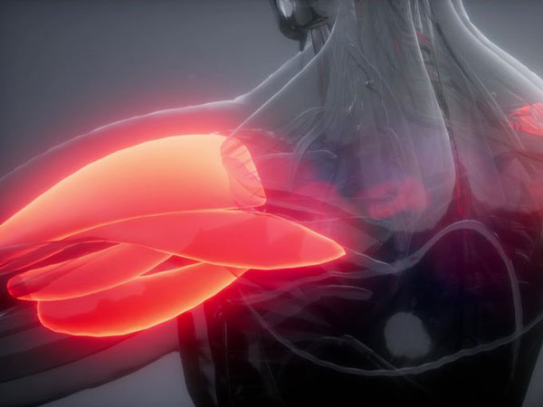 Muskelkater und Übersäuerung durch Laktat. © icetray  123rf.com.